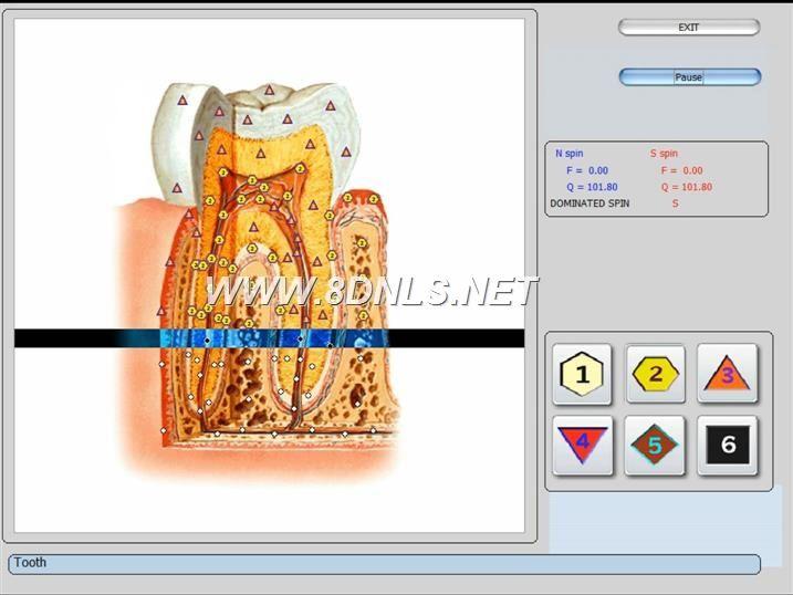 vector 8d IRLS 9d nls software (18)