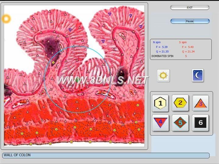 vector 8d IRLS 9d nls software (37)