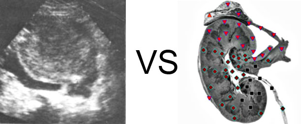 VECTOR NLS vs. Ultrasound Study (10)