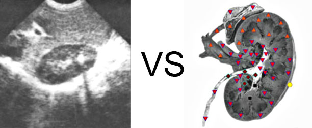 VECTOR NLS vs. Ultrasound Study (11)