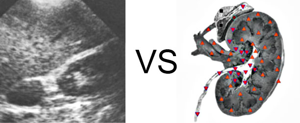 VECTOR NLS vs. Ultrasound Study (12)