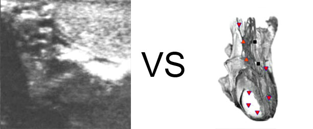 VECTOR NLS vs. Ultrasound Study (14)