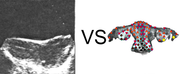 VECTOR NLS vs. Ultrasound Study (15)