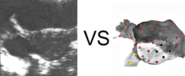 VECTOR NLS vs. Ultrasound Study (17)