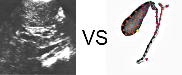 VECTOR NLS vs. Ultrasound Study (4)