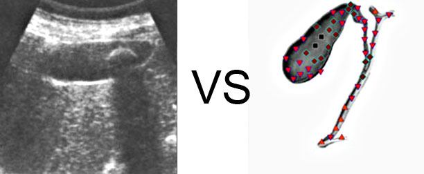 VECTOR NLS vs. Ultrasound Study (5)