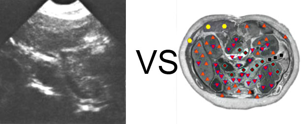 VECTOR NLS vs. Ultrasound Study (6)