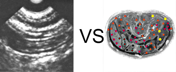 VECTOR NLS vs. Ultrasound Study (8)