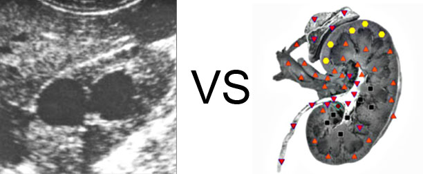 VECTOR NLS vs. Ultrasound Study (9)