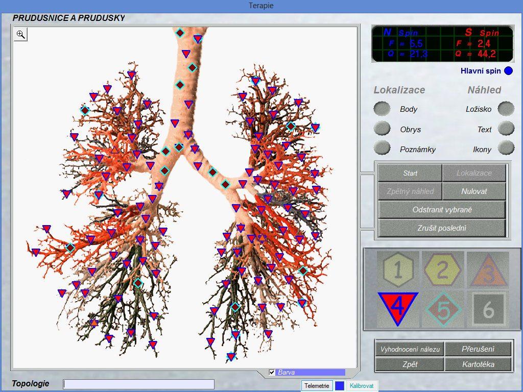 Why We Use 8d-lris bioresonance scanner what price 8d NLS | 8D NLS