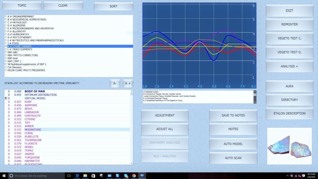 Best iris 8d software for 8D NLS | 8D NLS | 8D LRIS | 8d nls
