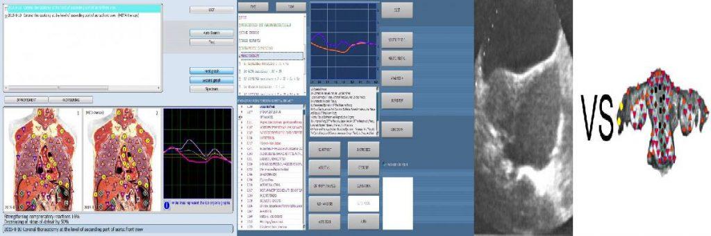 8d nls analyzer