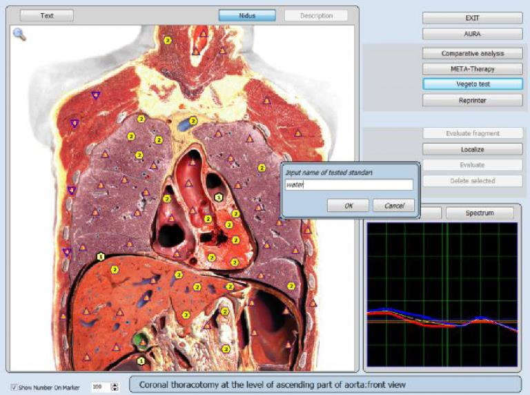 8d nls health analyzer price