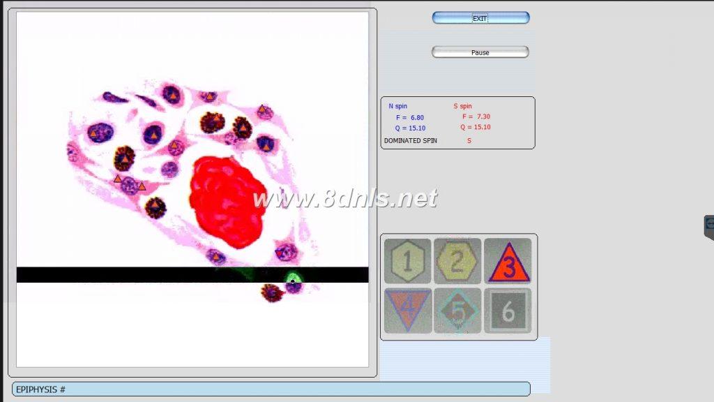9d nls non-lined diagnostic system