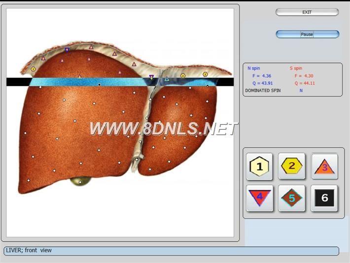vector nls device