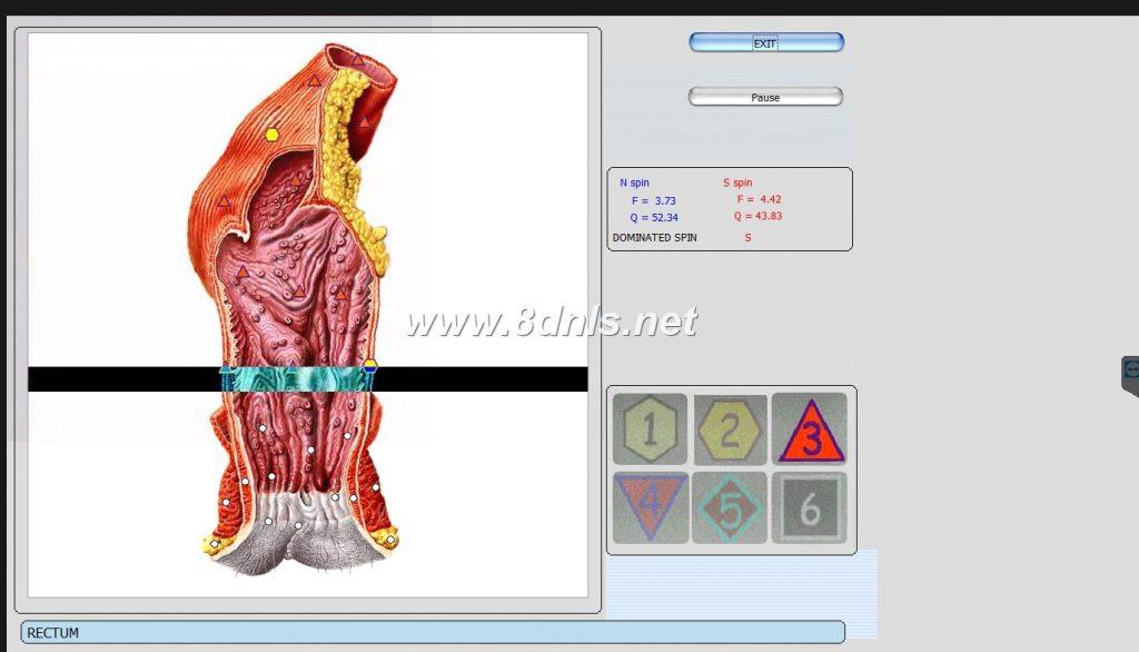 nls diagnostics